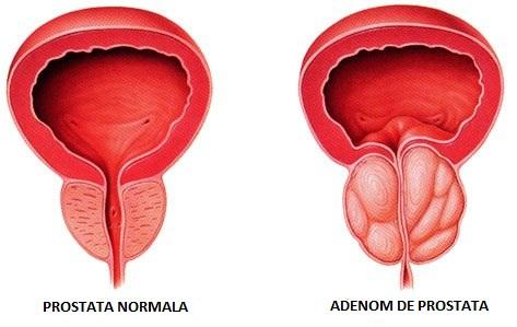 adenoma de prostata tratament)