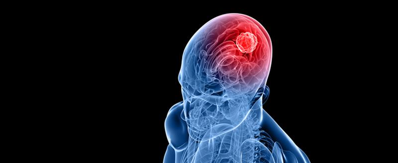 Tumora cerebrală: tipuri, tratament și sechele posibile - Tauri - 2021