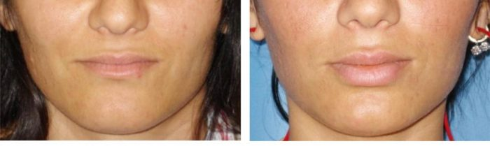 Lip augmentation - medpark