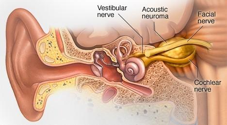 cancer urechea interna