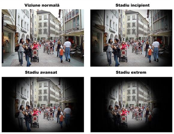 cum să pierzi vederea în glaucom
