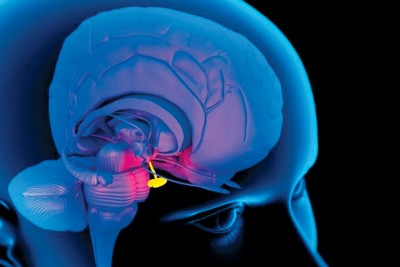 Tumorile glandei pituitare – cancerul hipofizar - Cancer