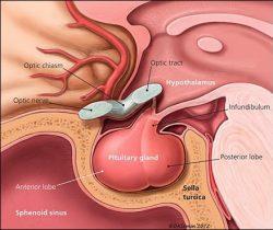 o tumoare pituitară provoacă pierderea în greutate pierdere în greutate pp de 3 luni