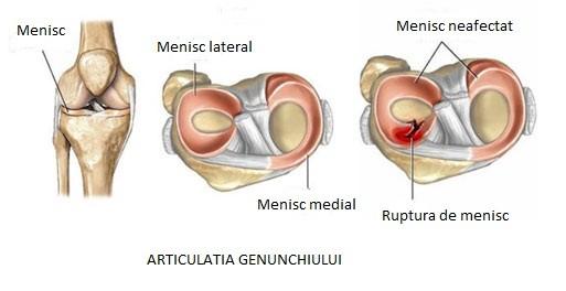 articulațiile mâinilor rănesc degetele ce trebuie făcut unguent eficient pentru inflamația genunchiului