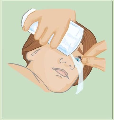 Miopie de igiena vederii miopie de prevenire