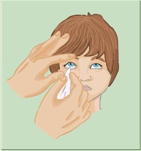 prim ajutor pentru afectarea vederii)